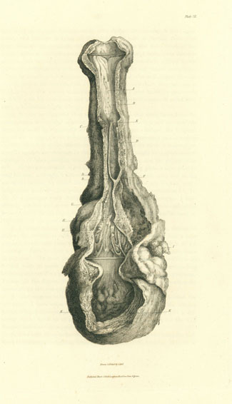 Engravings from specimens of morbid parts. Fasciculus 1 (all published). Charles Bell.