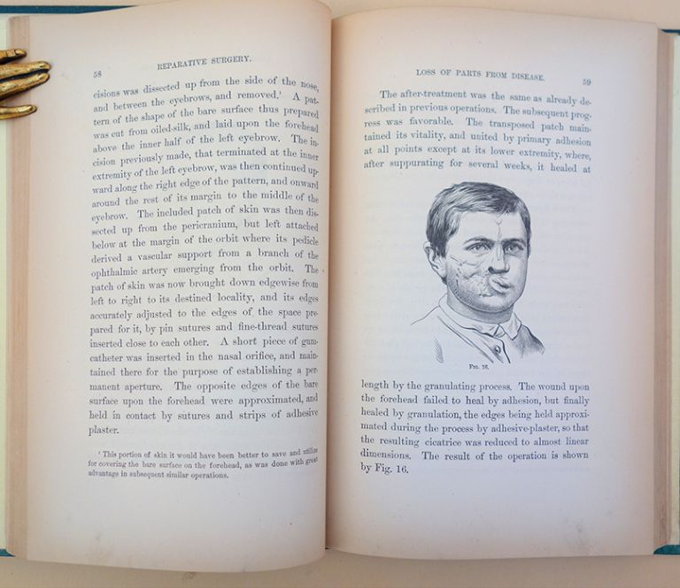 Contributions to reparative surgery. 86 wood-engraved illustrations. Gurdon Buck.