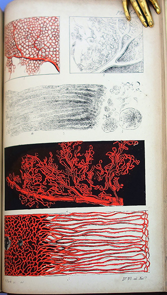 The microscopic anatomy of the human body, in health and disease. 2 vols. Arthur Hill Hassall.