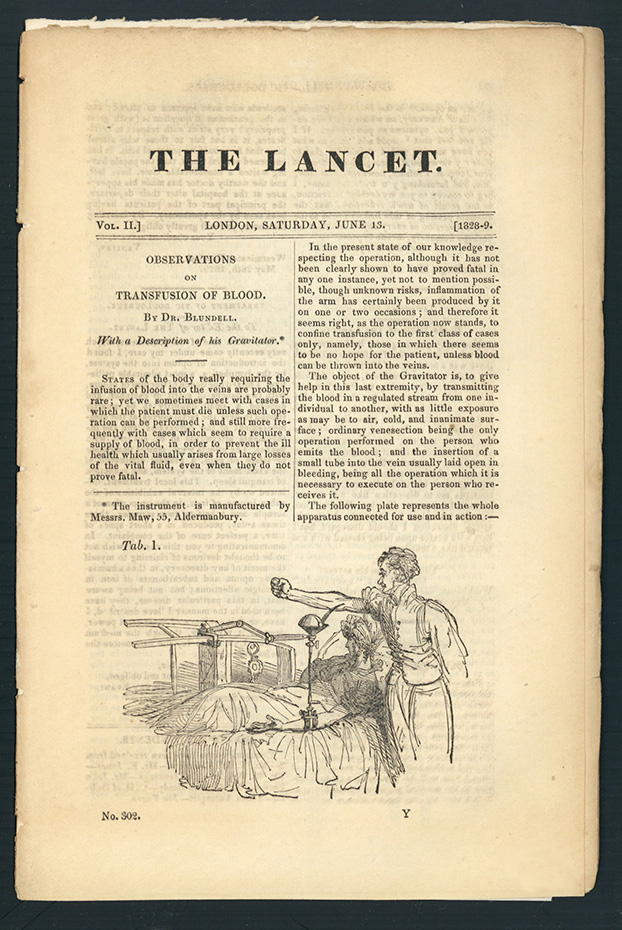 Observations on transfusion of blood. In The Lancet 2 (1828-29): 321-24. James Blundell.