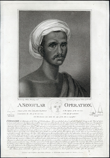 A singular operation. Engraved print. William Nutter, Cowasjee, engraver.
