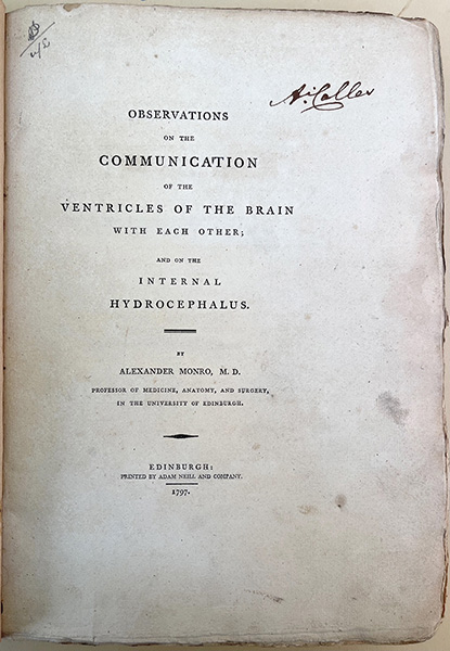 Three treatises. On the brain, the eye, and the ear. Alexander Monro, secundus.