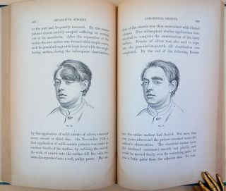 Contributions to reparative surgery. 86 wood-engraved illustrations.