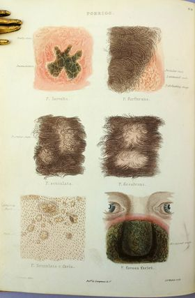 Atlas of delineations of cutaneous eruptions