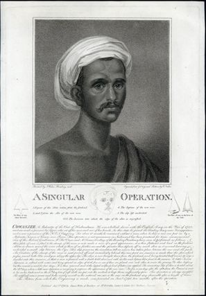 A singular operation. Engraved print. William Nutter, Cowasjee, engraver