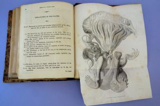 Collection of 17 18th & 19th century theses & offprints in obstetrics & gynecology from Danyau's library.